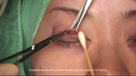 Half-Incisional Double Eyelid Surgery