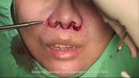 Philtrum Reduction (Upper Lip Lift)